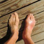 Gut Hastalığından İlaçsız Kurtulabilirsiniz