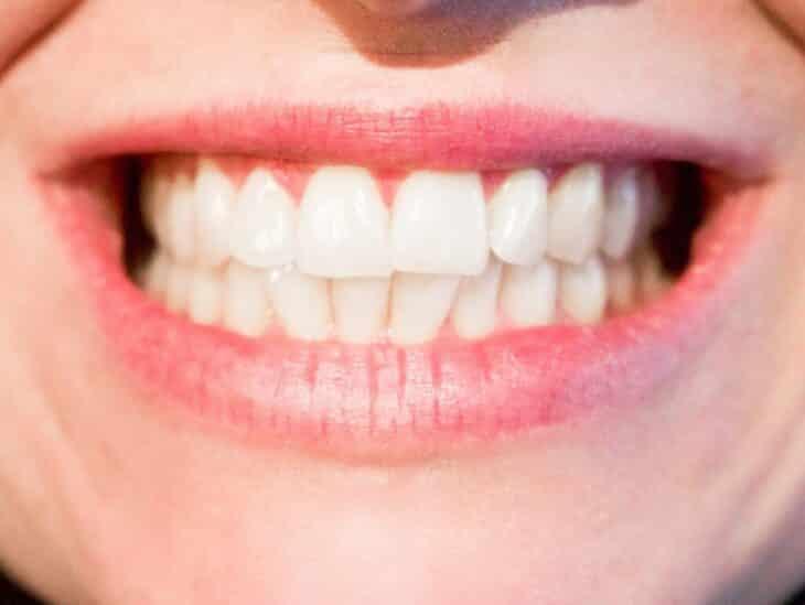 hindistan cevizi yağı diş