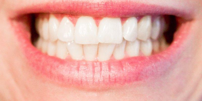 Hindistan Cevizi Yağı Diş Çürüklerine Karşı Diş Macunundan Daha Etkili